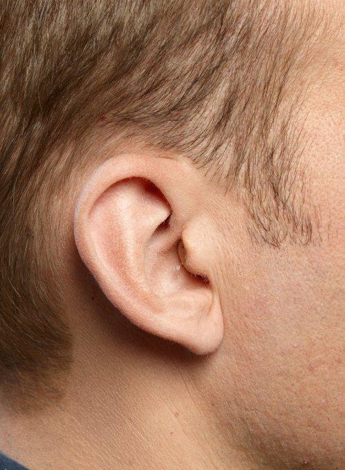 Wunder Ohr Hörgeräte